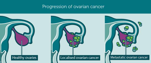 Progression_ovarianCancer