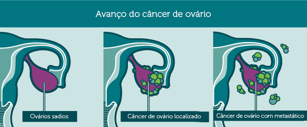 Progression_ovarianCancer